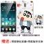 (025-873)เคสมือถือ Case Huawei Nova 2i/Mate10Lite เคสนิ่มลายการ์ตูนหลากหลายพร้อมฟิล์มหน้าจอและแหวนมือถือลายการ์ตูนเดียวกัน thumbnail 13